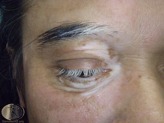 vitiligo-55.jpg