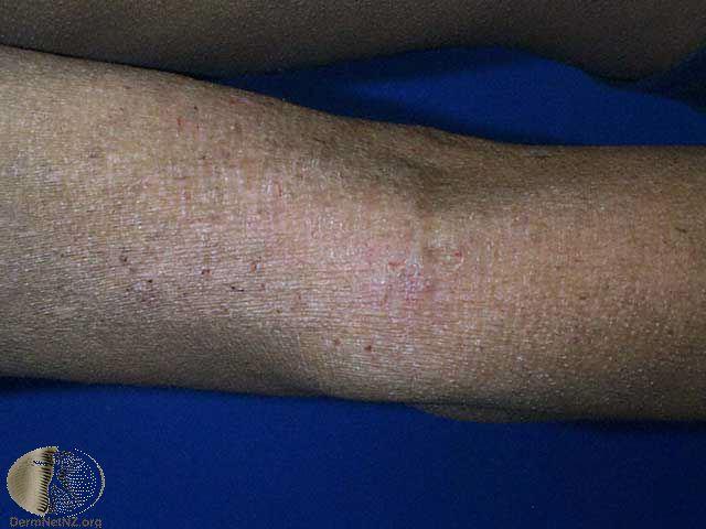 chr-dermatitis.jpg
