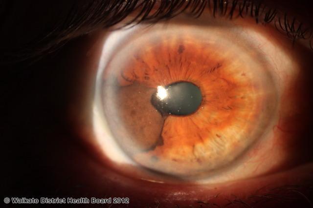 uveal-melanoma5.jpg